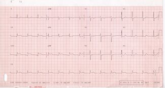 ECG 001
