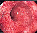 CD colitis 2.jpg
