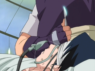 Uzumaki Naruto 320px-Scalpel